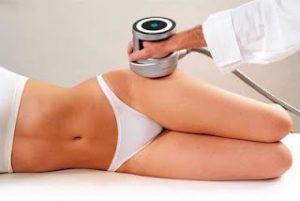 Lipoescultura ultrasónica