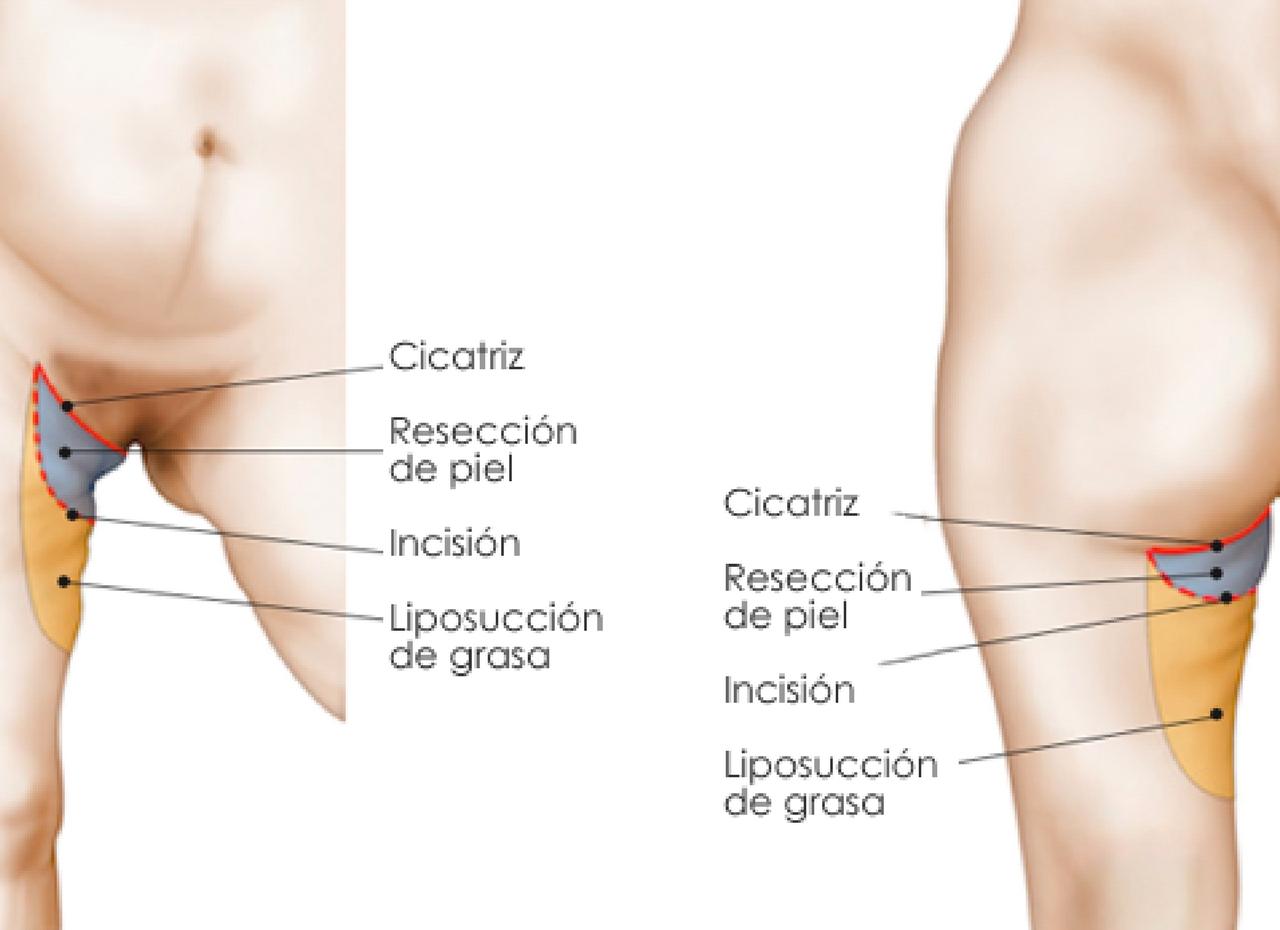 adelgazar parte interna del muslo