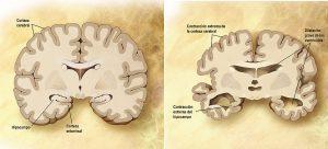 Cerebro corte frontal Alzheimer