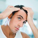 Causas de la caida capilar