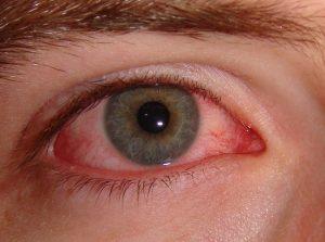 Trobamicina en gotas