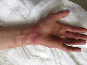 ketotifeno alergia